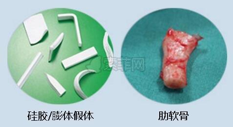 鼻中隔弯曲手术_鼻综合手术:鼻中隔、耳软骨、肋软骨来看看你_索菲网